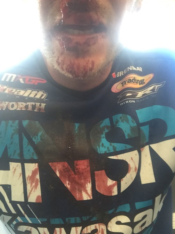Tommy Searle bloodied nose